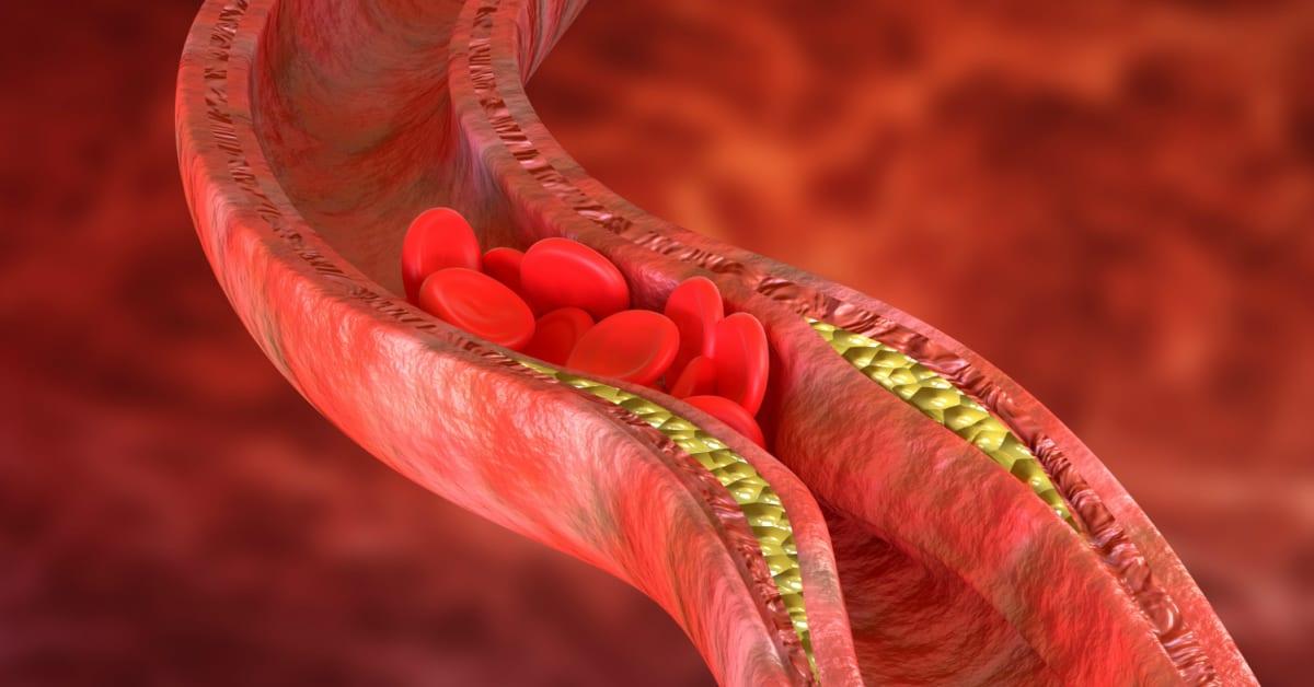 ניקוי עורקים לסוכרת - ליקוריץ